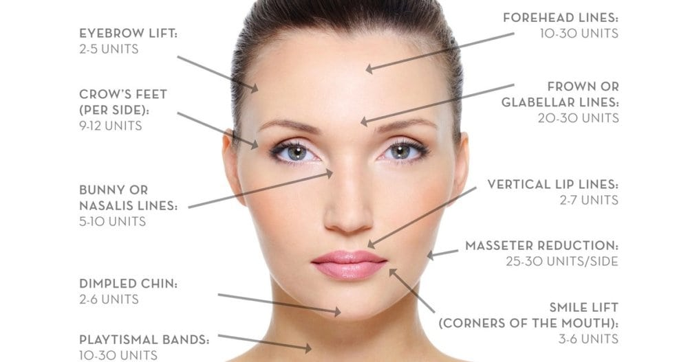 How Much Botox Will You Need?
